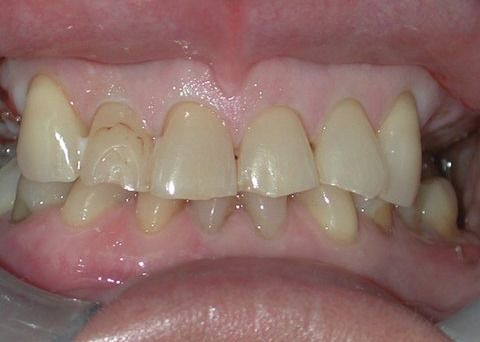 Featured dental case before picture