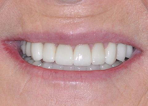 Featured dental case after picture