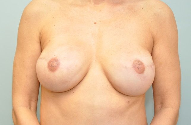 Before and after of a breast reconstruction patient