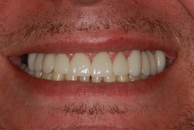 After dental implants treatment