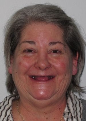 before dental implants picture