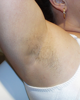 Hair Removal Before Image