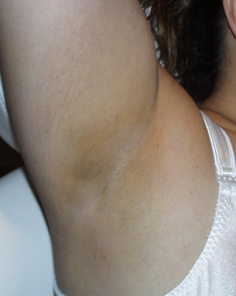 Hair Removal After Image