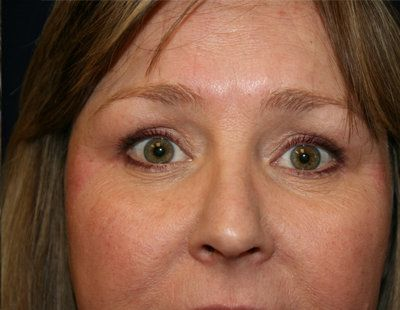 After blepharoplasty photo
