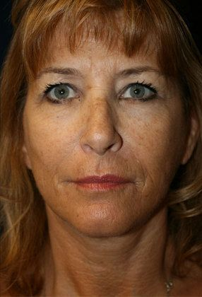 After face lift photo