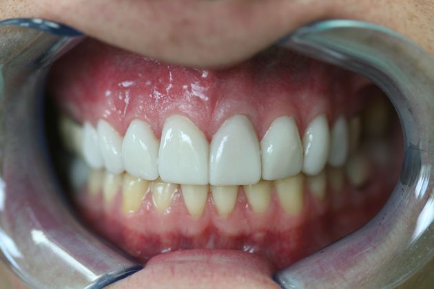 Closeup of patient's smile after treatment