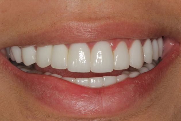 Implant Bridge with Full Mouth Rehabilititation - Dental ...
