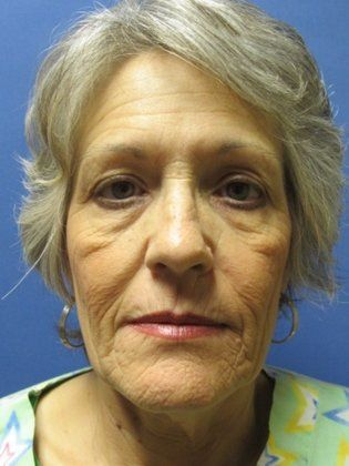 Image of Facelift Surgery BEFORE and after