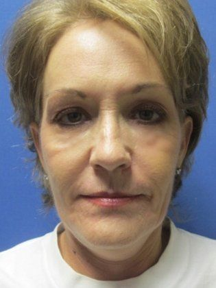 Image of Facelift surgeon in Little Rock, Ar Dr. Michael Devlin AFTER photo - older lady after facelift surgery in Little Rock, Ar with short silver blonde hair