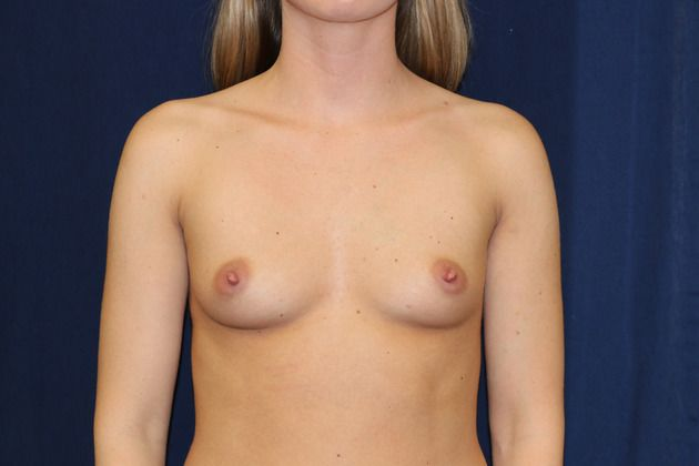 Breast implant before picture
