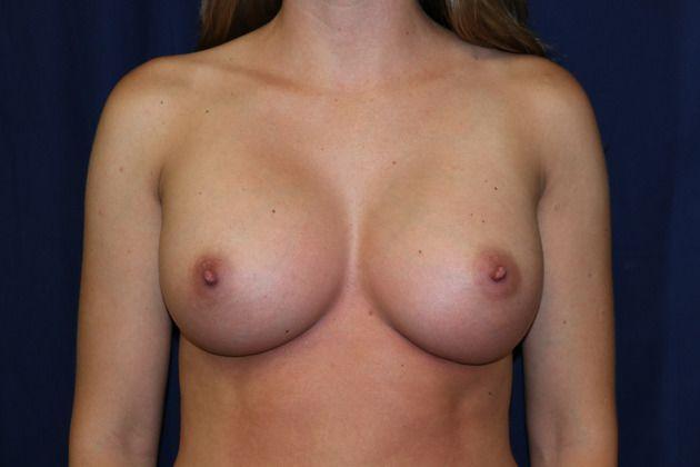 Breast implant after picture