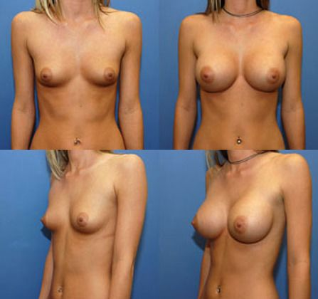 Assured, Nude breast enlargement sexy thanks how
