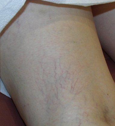Spider veins after photo