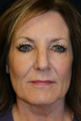 Before JUVEDERM® photo