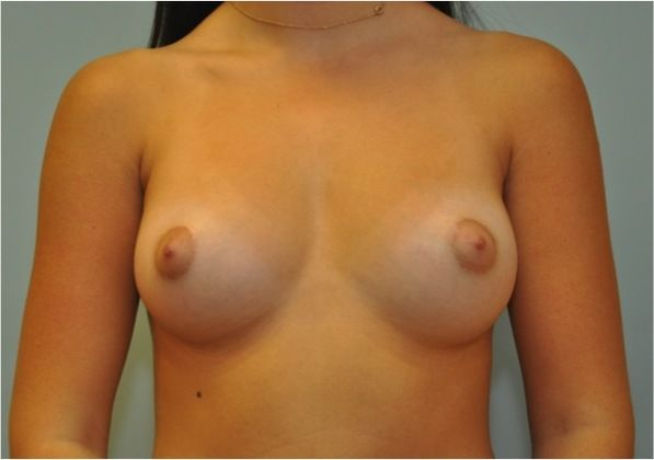 Before and after photo of breast augmentation patient
