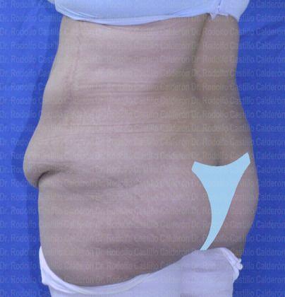 belt lipectomy lose weight
