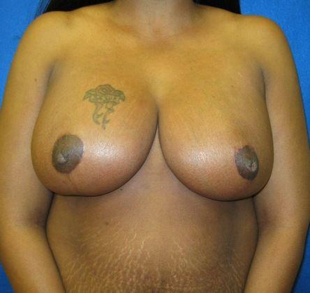 artistic beautiful nudes