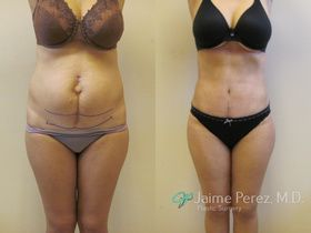 Tummy Tuck Tampa - Before & After - Front