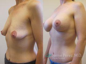 Breast_lift_side.jpg