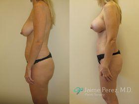 breast_lift_side_2.jpg