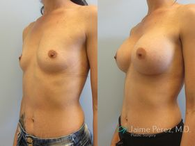 image of endoscopic breast augmentation