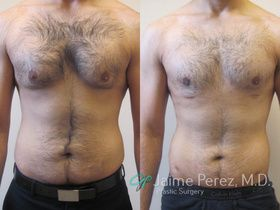 Male Breast Reduction Surgery Tampa