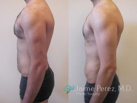 Picture Male Breast Reduction Surgery Tampa