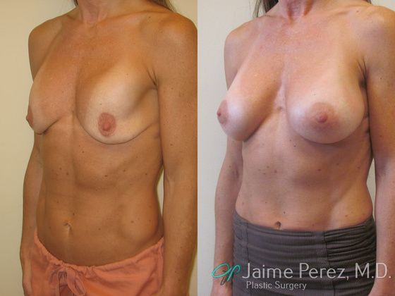 What Percentage of Women Have Breast Implants in the