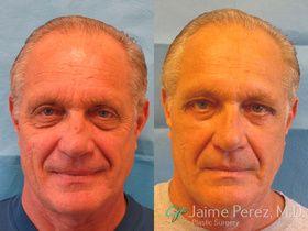 Eyelid_Surgery_Tampa.jpg