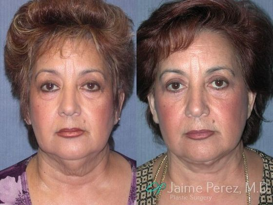 Have thought clearwater facial plastic surgery