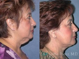 Photo Facelift Tampa