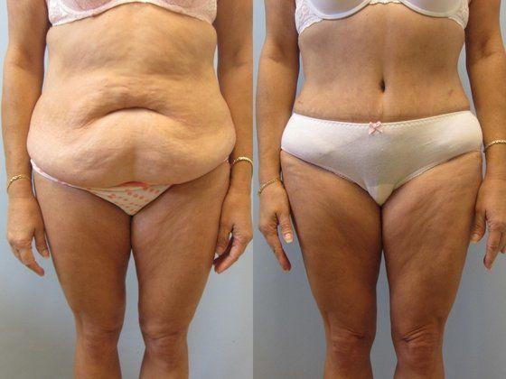 Abdominoplasty Tummy Tuck