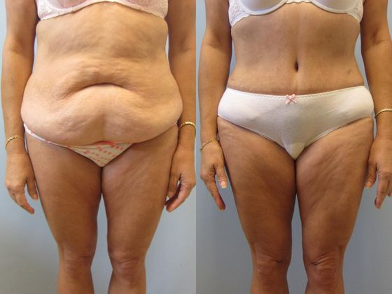 Brand New Look after Liposuction and Tummy Tuck ...