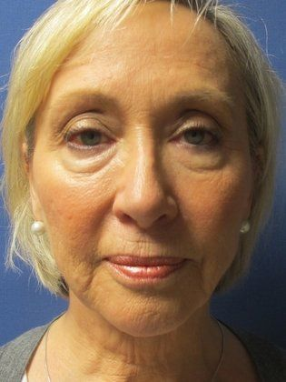 Before photo of a woman seeking Facelift Surgery in Little Rock, AR with the RestoreLift Facelift