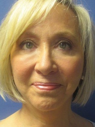After photo of a woman who was seeking Facelift Surgeons in Little Rock, AR and had the RestoreLift Facelift by Dr. Michael Devlin