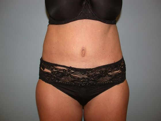 Before and after tummy tuck photos