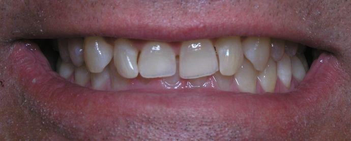 Before treatment with veneers