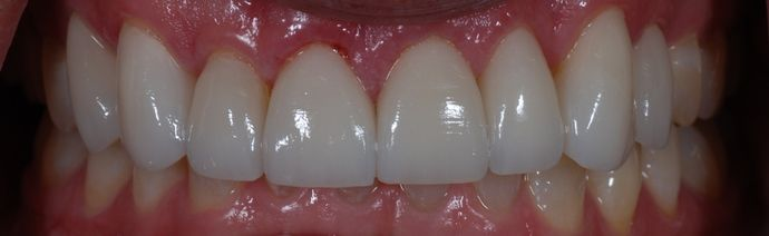 After treatment with veneers