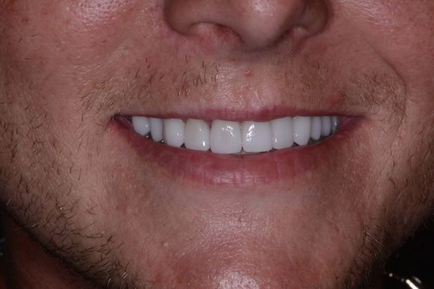 Smile makeover after photo