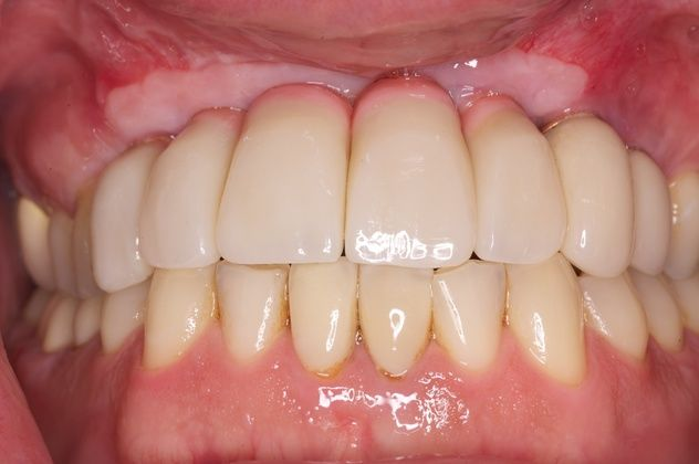 Restored teeth and bone after full mouth reconstruction