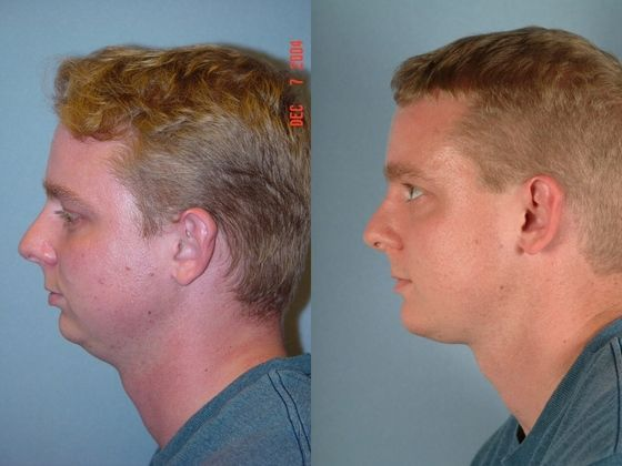 before and after chin surgery