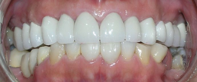 image of patient before dental crowns