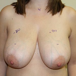 A before photo of a woman with large breasts