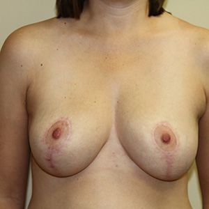 An after photo of a woman who has had a breast reduction