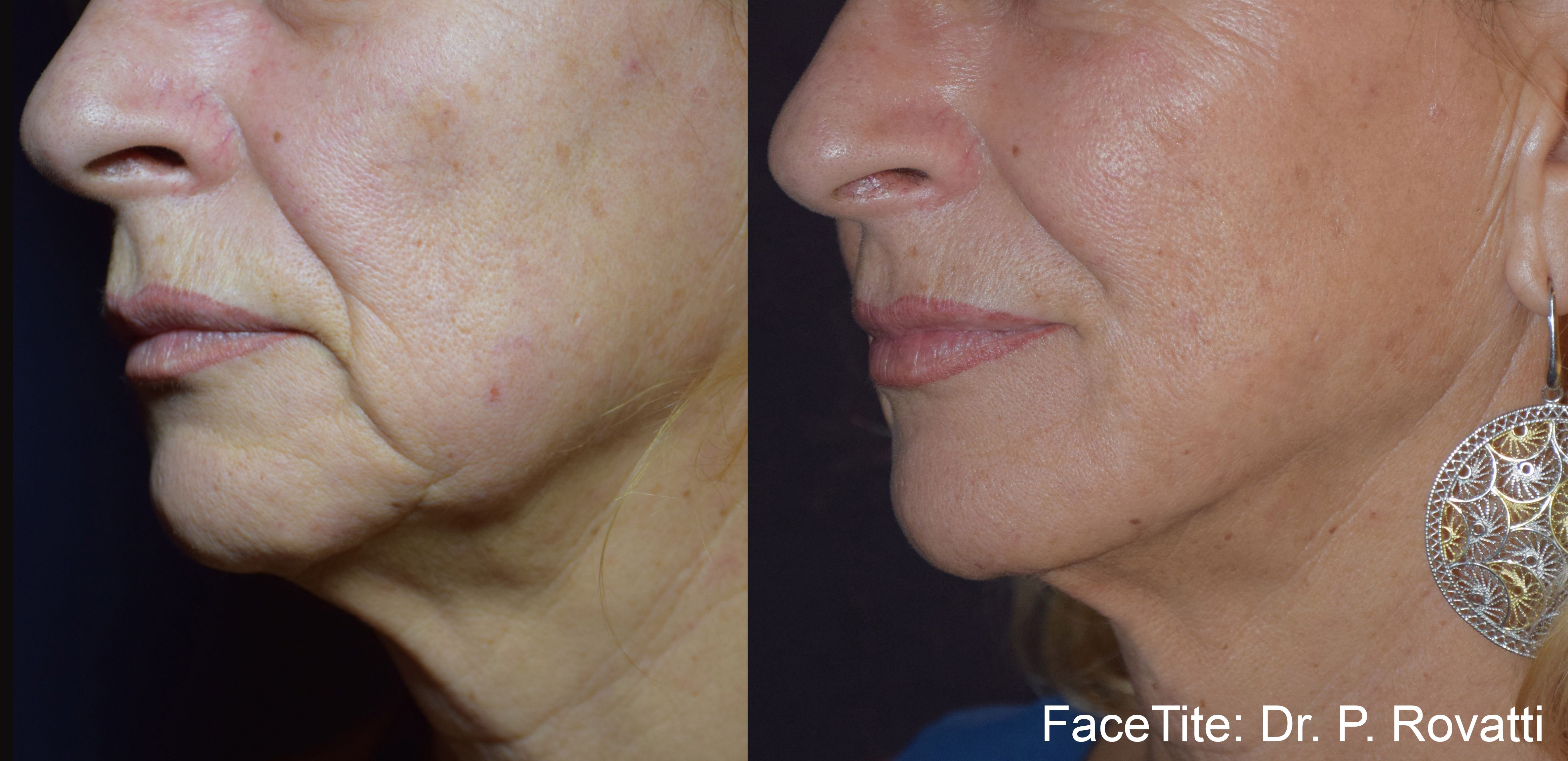 Case 1 - FaceTite - Before and After Gallery