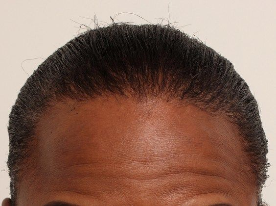 relaxed hair styles dr true traction alopecia fut studies 9769