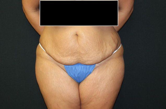 Before: tummy tuck