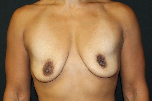 Before: breast augmentation