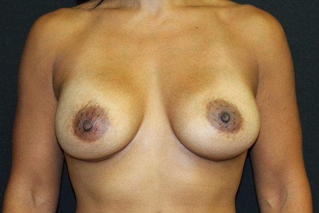 After: breast augmentation