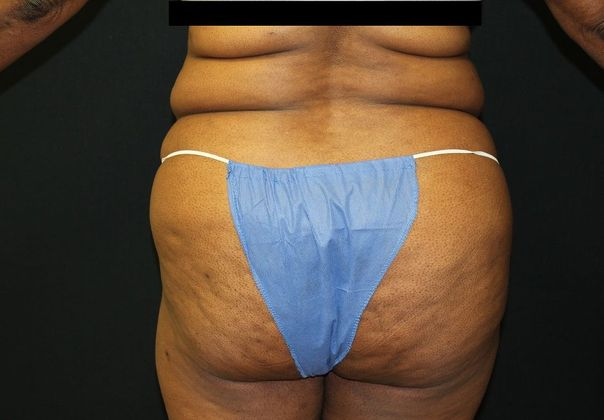 Before: liposuction from back
